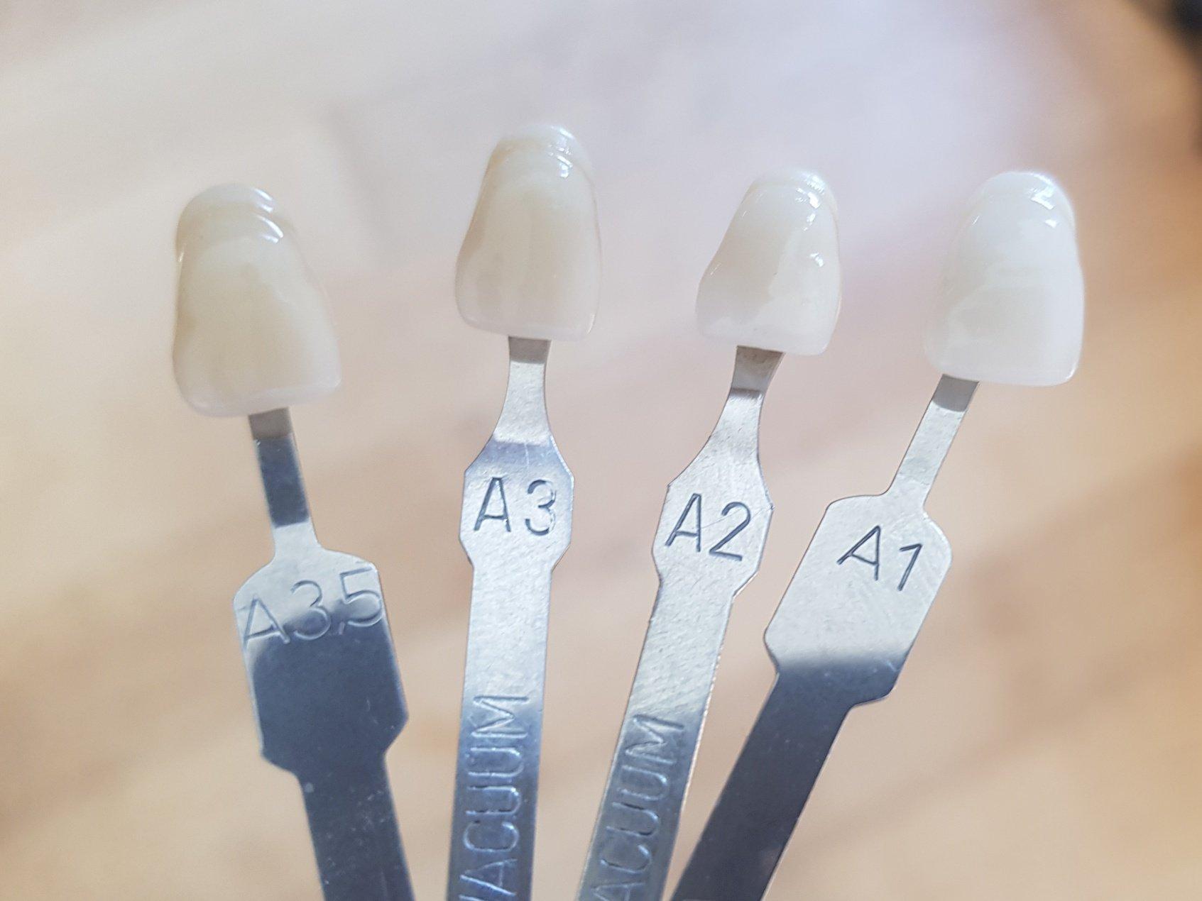 Gelb zahnfarbe a3 EP2359771A2